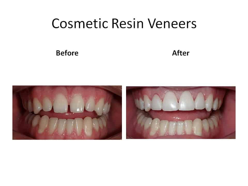 Cosmetic resin veneer pictures of before and after
