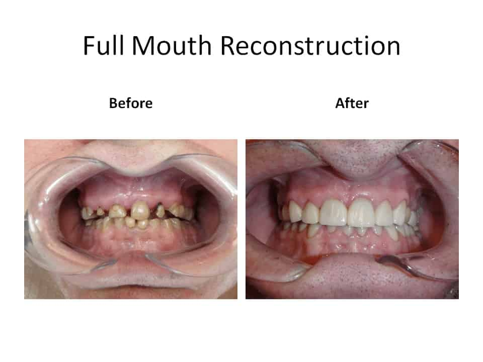 Before and after of a full mouth reconstruction case