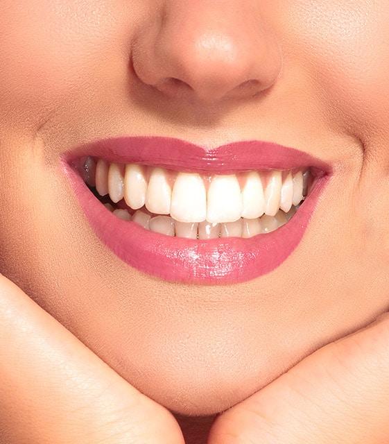 Dental-Bridge-Dentist-in-Geneva