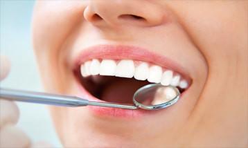 Dental-Onlays-and-Inlays-in-Geneva