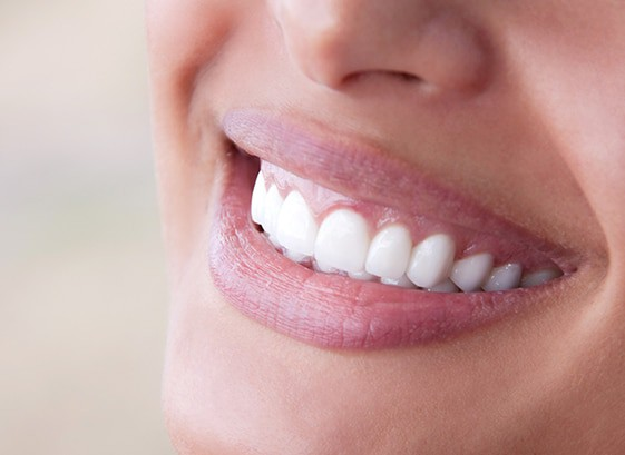 SmileSimplicity-in-Geneva-Dentist-Veneers