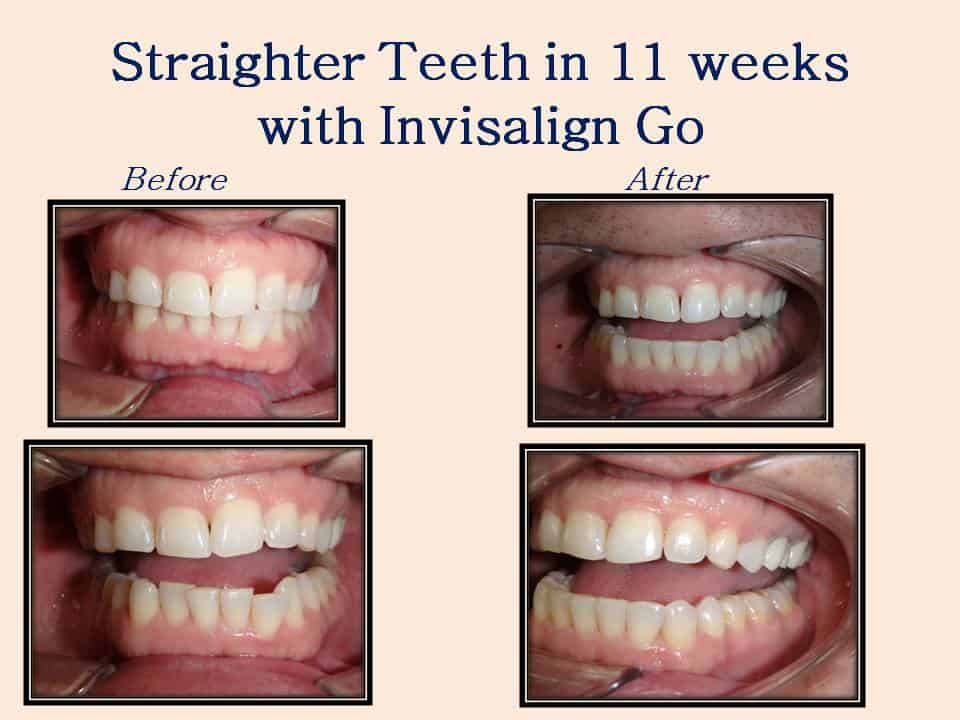 Straighter teeth in 11 weeks with Invisalign Go
