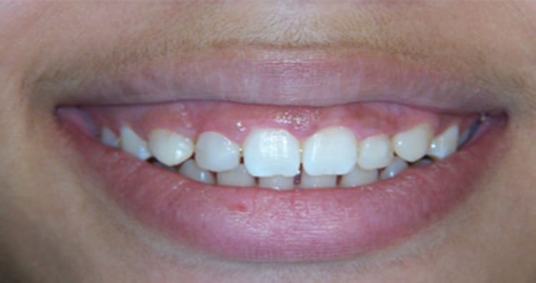 Before and After Smile 10