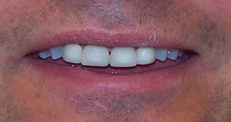 Before and After Smile 12