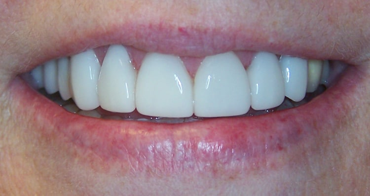 Before and After Smile 4