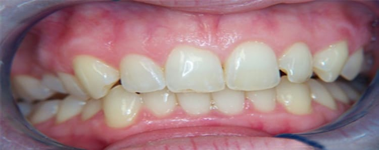 Before and After Smile 5