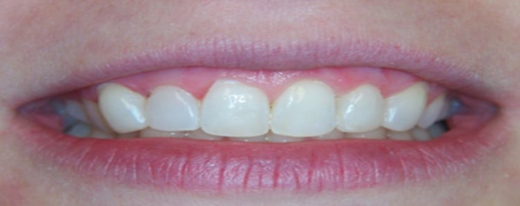 Before and After Smile 6