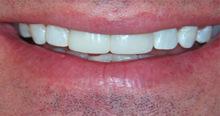 Before and After Smile 8